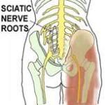 Sciatica sciatic nerve pain relief treatment