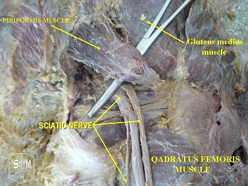 sciatic nerve5-349x262