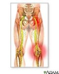 sciatica pain in the left buttock, right buttock, butt cheek, posterior pelvis, hips, and legs - sciatic nerve pain relief treatment